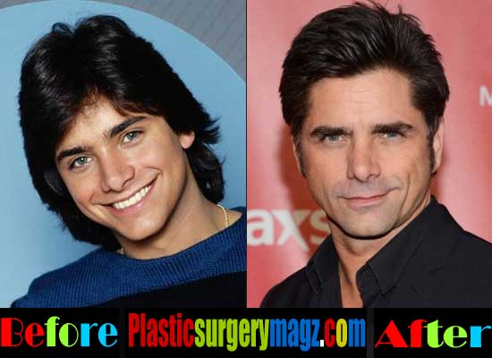 John Stamos Plastic Surgery Pictures