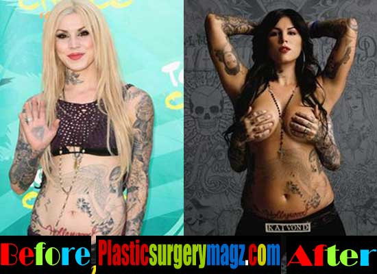 Kat Von D Plastic Surgery Breast Implant