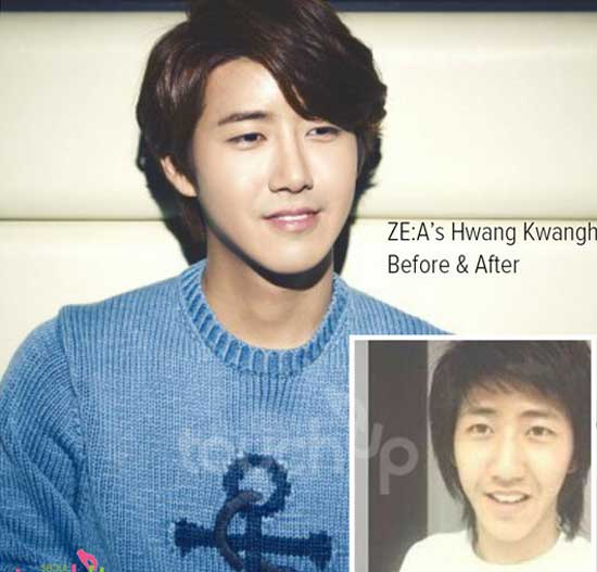 Kwang Hee Plastic Surgery Before and After Pictures