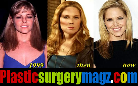 Mary Mccormack Plastic Surgery Before and After Pictures
