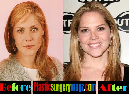 Mary Mccormack Plastic Surgery Photos