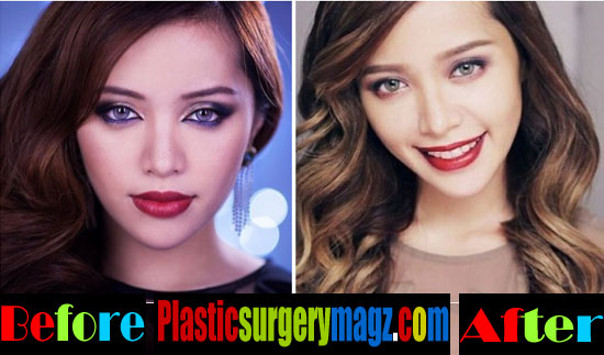 Michelle Phan Plastic Surgery Pictures