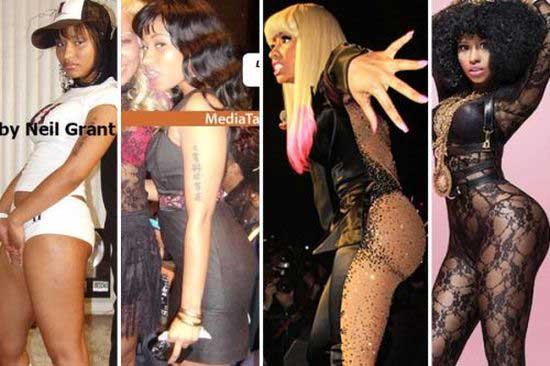 Nicki Minaj Buttocks Before After