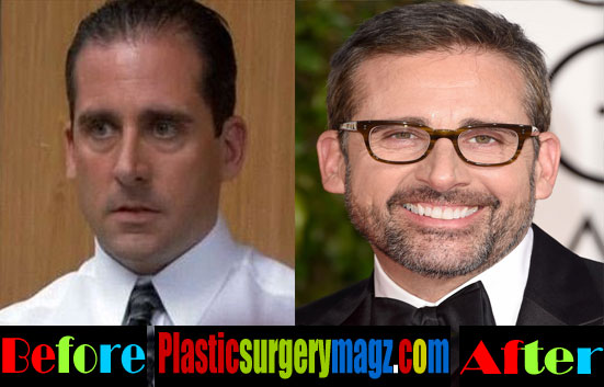 Steve Carell Plastic Surgery Hair Transplant
