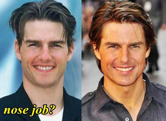 Tom Cruise Nose Job Before and After Pictures