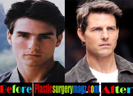 Tom Cruise Nose Job Pictures