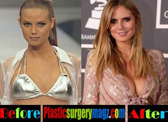 Heidi Klum Plastic Surgery Breast Implant