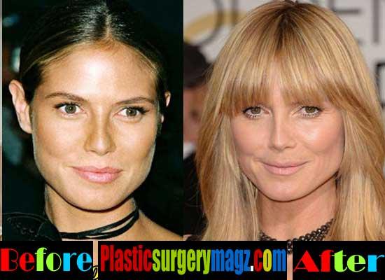 Heidi Klum Plastic Surgery Nose Job