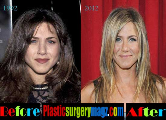 Jennifer Aniston Plastic Surgery Before and Now