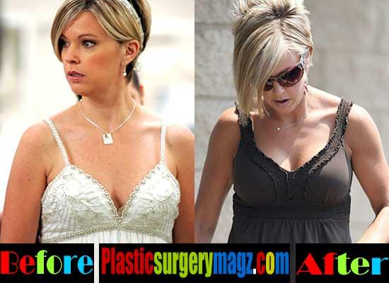 Kate Gosselin Plastic Surgery Boob Job