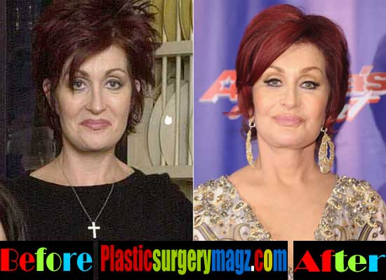 Sharon Osbourne Plastic Surgery Pictures