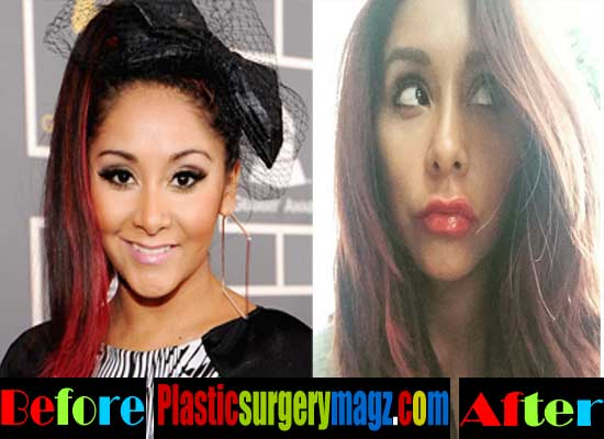 snooki plastic surgery snooki before and after plastic