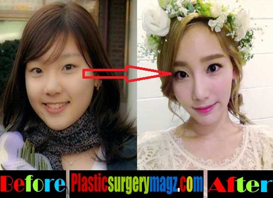 Taeyeon Plastic Surgery Before and After Blepharoplasty