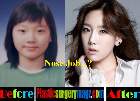 Taeyeon Plastic Surgery Before and After Nose Job