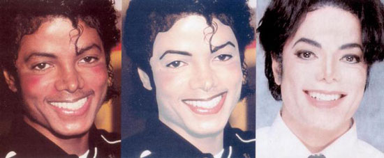 Worst Celebrity Plastic Surgery- Michael Jackson Plastic Surgery