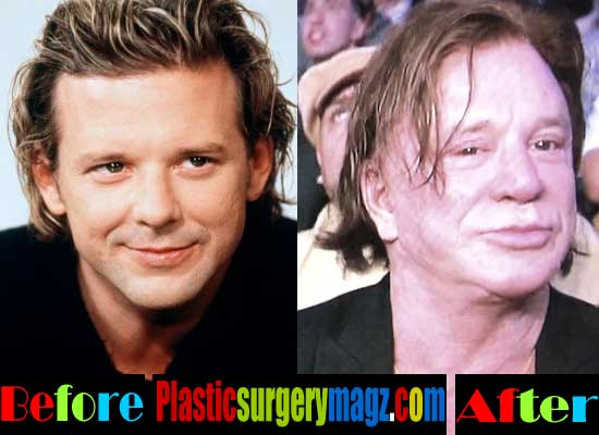 Worst Celebrity Plastic Surgery- Mickey Rourke Plastic Surgery