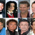 Worst Celebrity Plastic Surgery- Worst Male Celebrity Plastic Surgery