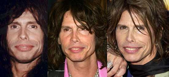 Worst Male Celebrity Plastic Surgery - Steven Tyler plastic surgery