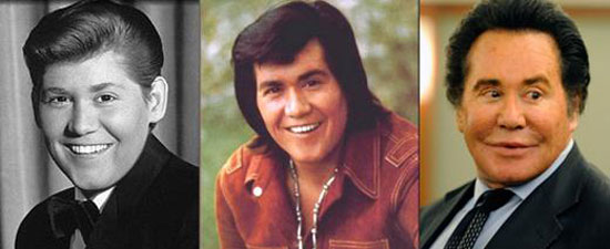 Worst Male Celebrity Plastic Surgery - Wayne Newton Plastic Surgery