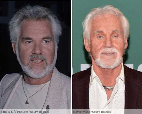 Worst Male Plastic Surgery- Kenny Rogers plastic surgery