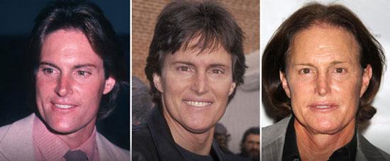 Worst Plastic Surgery - Bruce Jenner Plastic Surgery