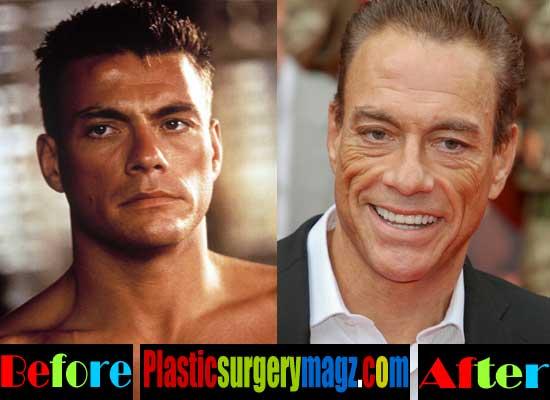 Worst Plastic Surgery - Jean Claude Van Damme plastic surgery