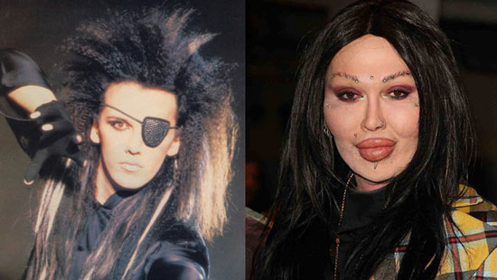 Worst Plastic Surgery - Pete Burns Plastic Surgery