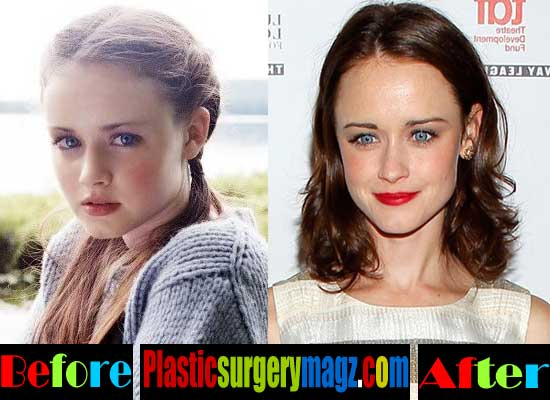 Alexis Bledel Plastic Surgery Before and After Nose Job