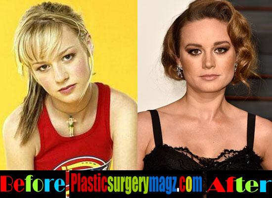 Brie Larson Plastic Surgery Rhinoplasty