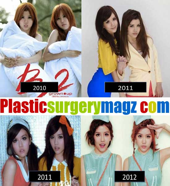 By2 Plastic Surgery Before and After Images