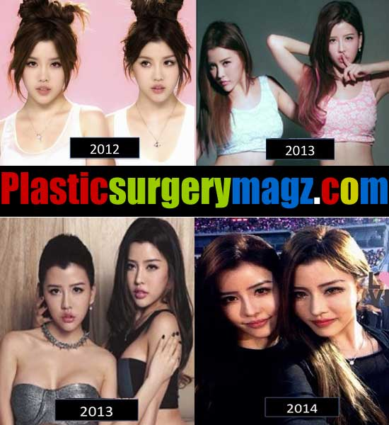 By2 Plastic Surgery Before and After Pictures