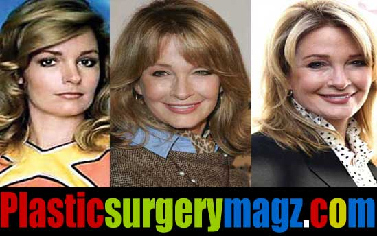 Deidre Hall Plastic Surgery Before and After Photos