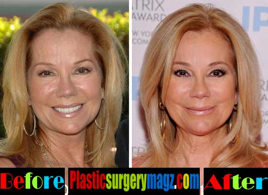 Kathie Lee Gifford Before and After Facelift