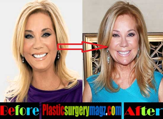 Kathie Lee Gifford Plastic Surgery Before and After Nose Job