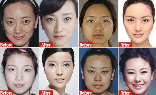 Korean Double Eyelid Surgery Pictures