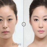 Asian Eyelid Surgery-South Korean Eye Surgery Cost and Clinics