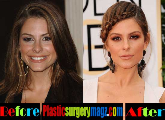 Maria Menounos Plastic Surgery Nose Job
