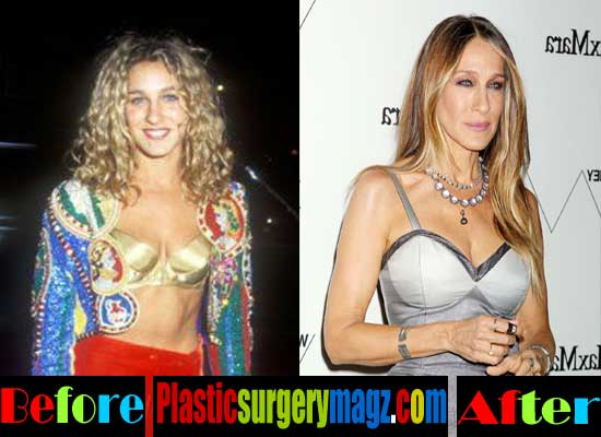Sarah Jessica Parker Boob Job Before and After