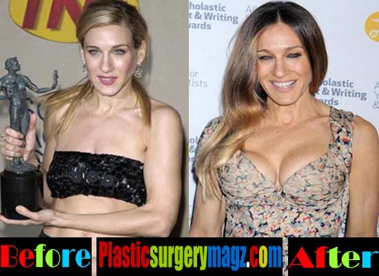 Sarah Jessica Parker Breast Implants Before and After