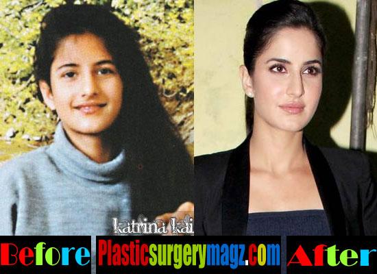 Katrina Kaif Plastic Surgery Bang Bang