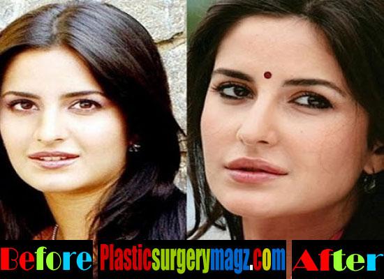 Katrina Kaif Plastic Surgery Chikini Chamel