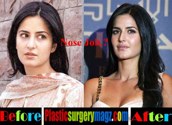 Katrina Kaif Plastic Surgery Images