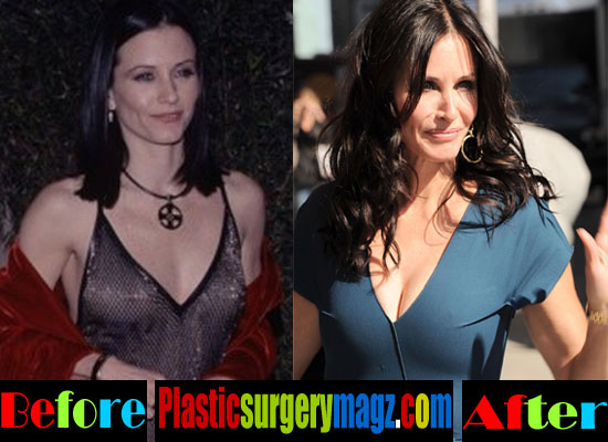 Courteney Cox Plastic Surgery Before and After Boob Job