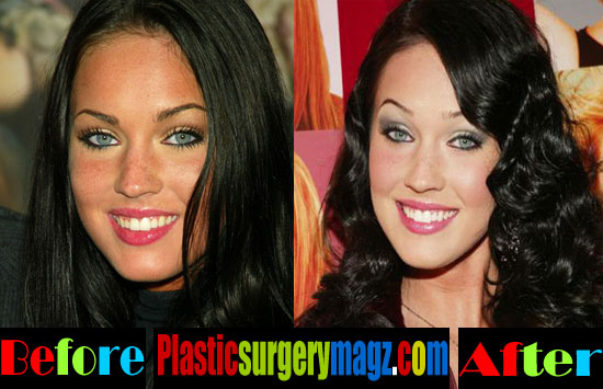 Megan fox before and after plastic surgery megan fox for Can you get a tattoo before surgery