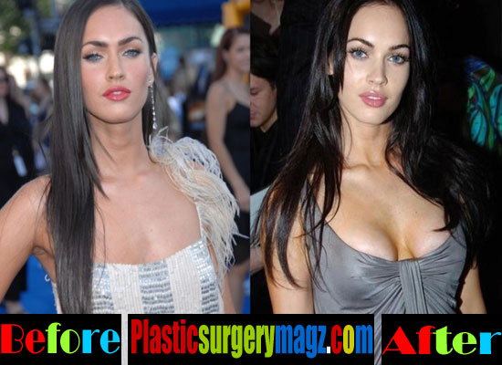 Megan Fox Boob Job Before and After