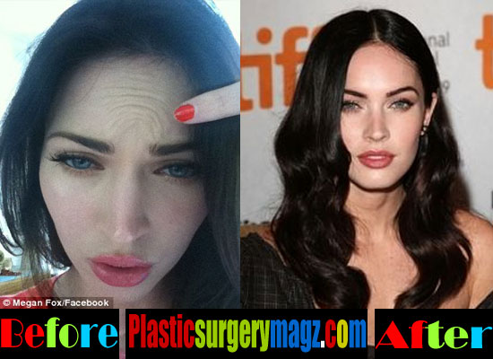 Megan Fox Botox Before and After