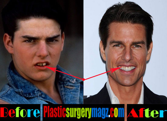 Tom Cruise Teeth Before and After