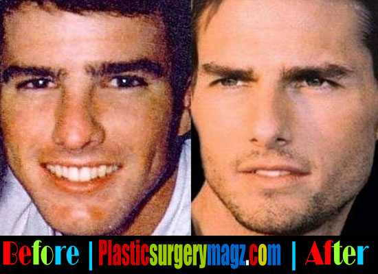 Tom Cruise's Nose Job Plastic Surgery