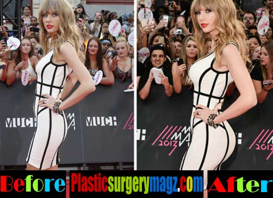 Taylor Swift Butt Implants Before and After