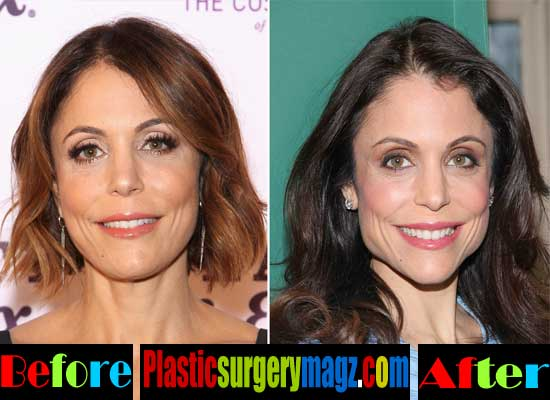 Bethenny Frankel Face Before and After